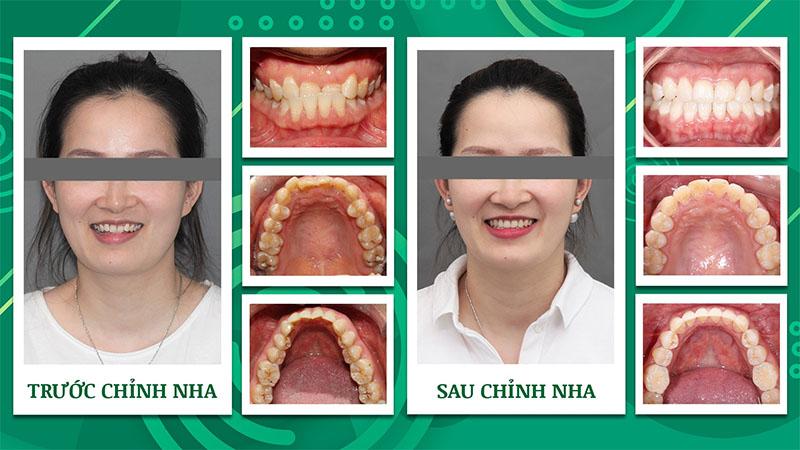 Khách hàng niềng răng móm Nha khoa Trẻ