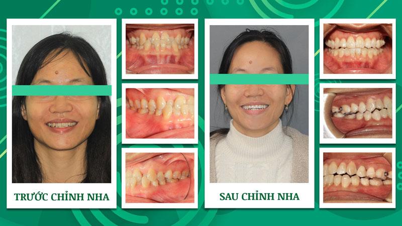 Khách hàng niềng răng chen chúc Nha khoa Trẻ