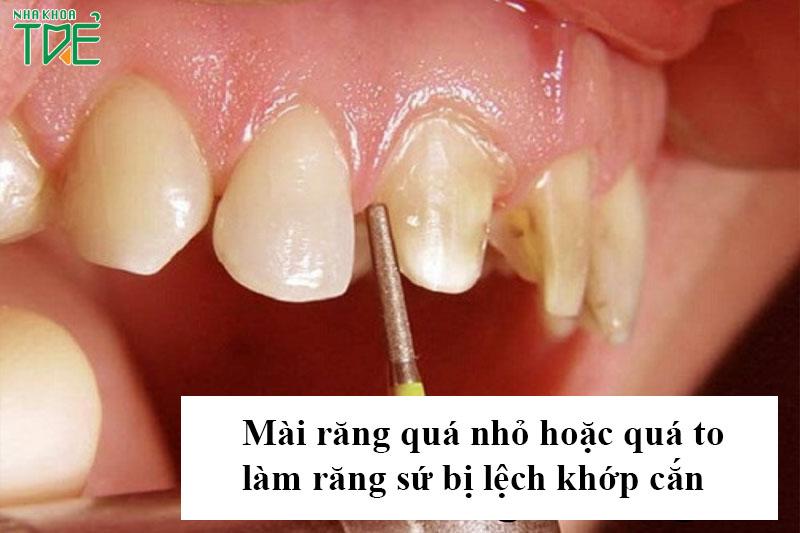 Mài răng là kỹ thuật quan trọng ảnh hưởng rất lớn đến kết quả bọc răng sứ
