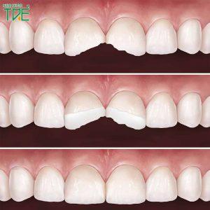 Tại sao nên bọc răng sứ cho răng cửa bị mẻ? Loại răng sứ nào tốt nhất?