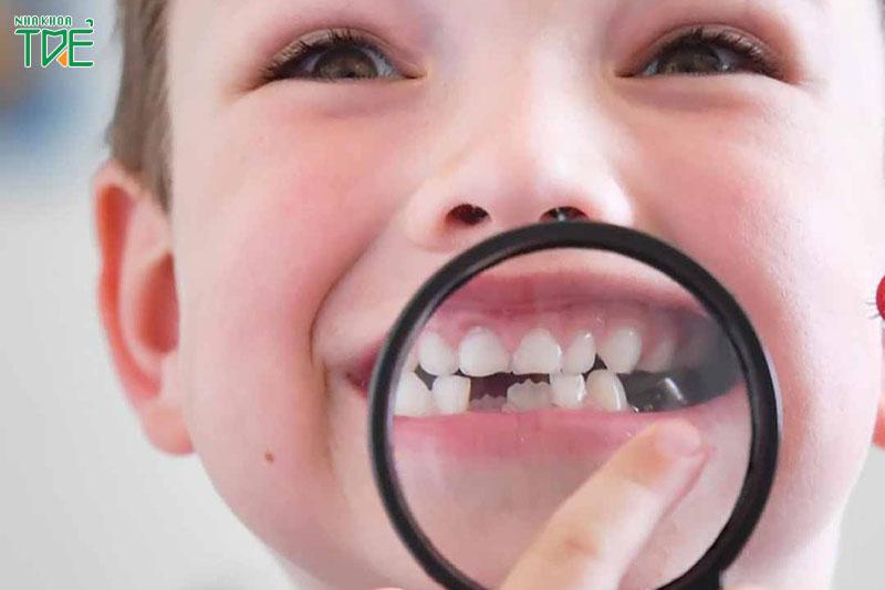 Có nên niềng răng cho bé 6 tuổi không? Thời điểm nào tốt nhất?