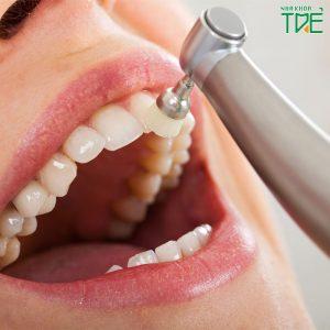 Đánh bóng răng sứ có được không? Cần lưu ý những gì?