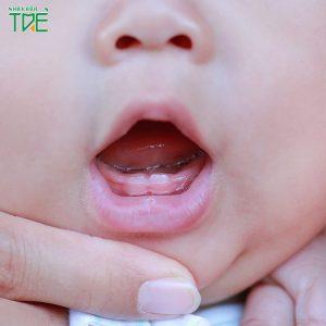 Dấu hiệu nứt lợi mọc răng ở trẻ và cách làm dịu cơn đau cho bé