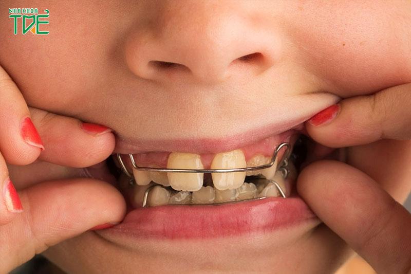 Nong hàm có thể ảnh hưởng đến phát âm trong thời gian đầu