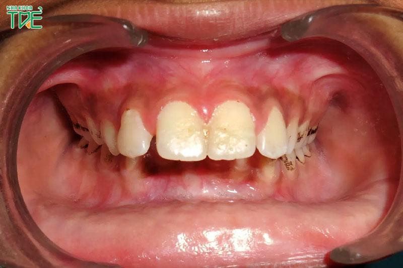 Hô hàm nặng khiến hàm dưới dễ tác động vào mô nướu hàm trên