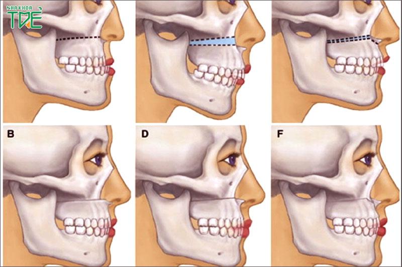 Phẫu thuật cắt hàm hô cho các trường hợp sai lệch do xương hàm