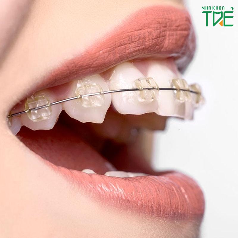 Giá niềng răng trọn gói cho từng phương pháp chỉnh nha