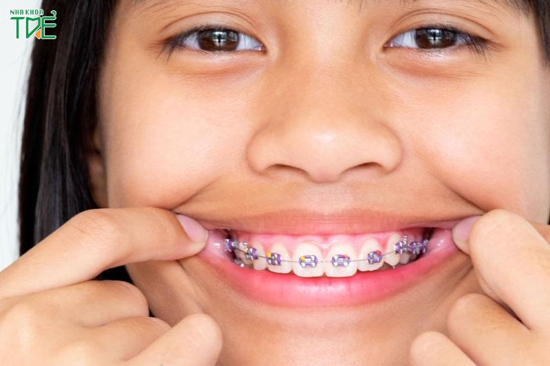 Giá niềng răng trọn gói ở mắc cài kim loại thấp hơn so với các phương pháp khác