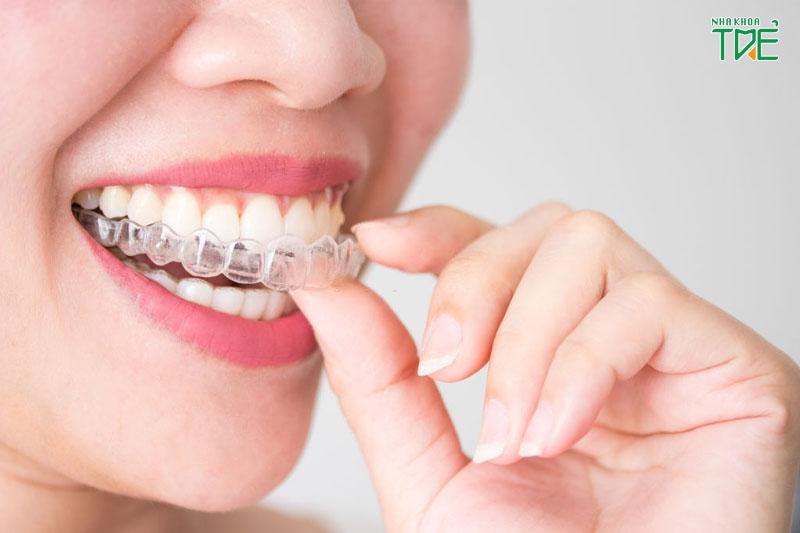 Niềng răng trong suốt Invisalign - thuận tiện cho người bận rộn và giao tiếp nhiều