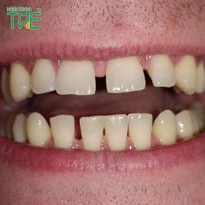 Giải pháp khắc phục răng cửa thưa hiệu quả nhất?