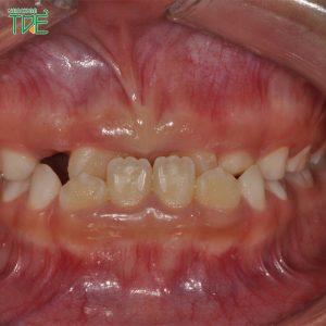 Hàm móm là gì? Hàm móm có niềng răng được không?