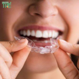 Lưu ý khi niềng răng tại nhà bằng khay niềng tháo lắp