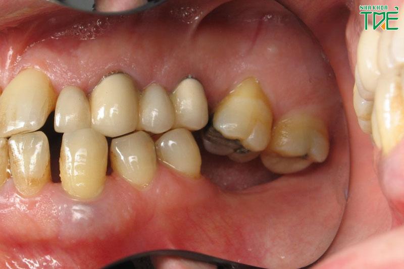 Nhổ răng số 6 có cần trồng lại không? Giải pháp nào hiệu quả nhất?