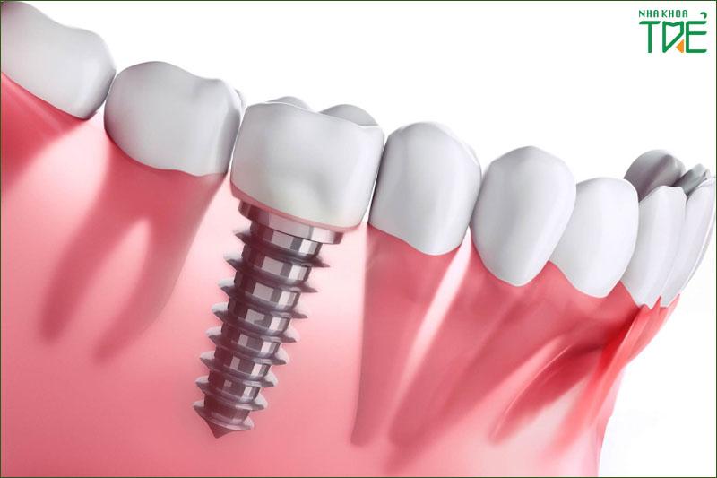 Cấy ghép Implant phục hình răng số 6 từ chân răng