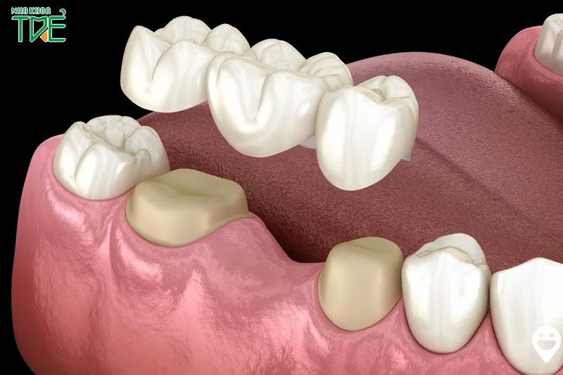 Cầu răng sứ phục hình nhanh chóng trong vài ngày