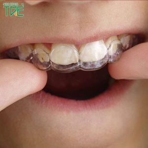 Niềng răng bằng máng nhựa là gì? Có hiệu quả không?