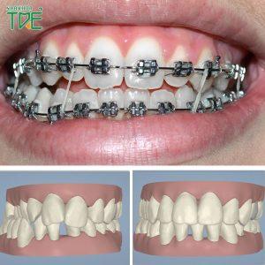 Niềng răng khớp cắn chéo có hiệu quả không? Giá bao nhiêu tiền?