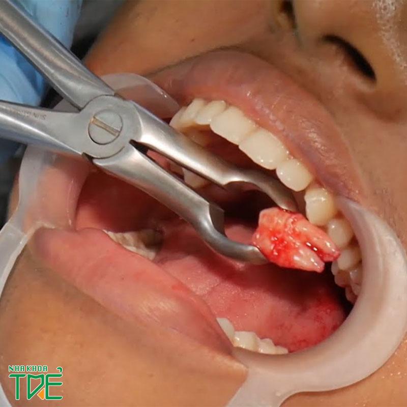 Quy trình nhổ răng khôn đạt chuẩn gồm mấy bước?