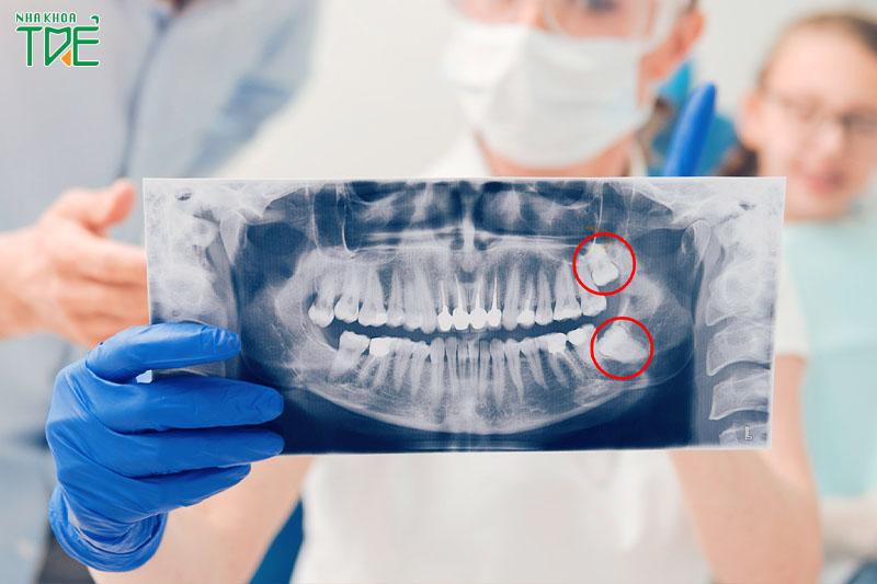 Bước thăm khám và chẩn đoán là rất quan trọng khi nhổ răng khôn