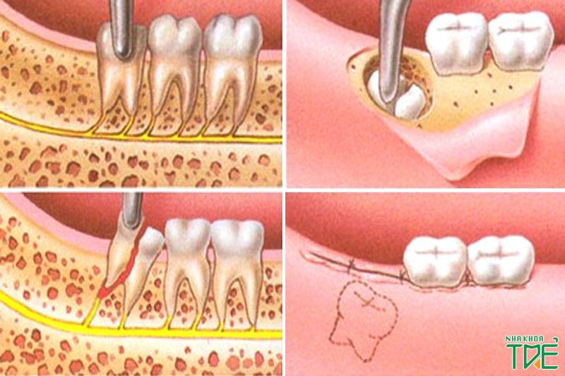 Nhổ răng khôn cần đúng thao tác, đúng kỹ thuật