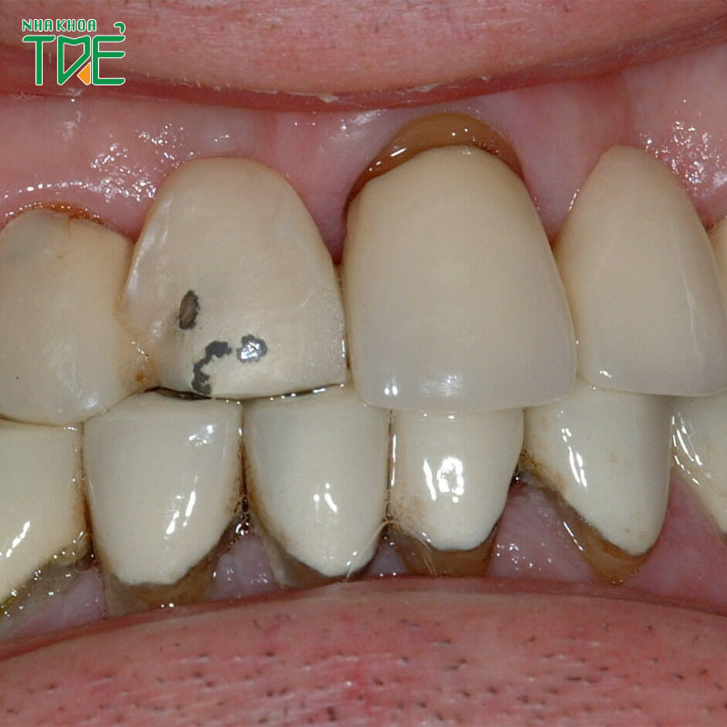 Răng sứ bị hỏng là do đâu? Cách xử lý như thế nào?