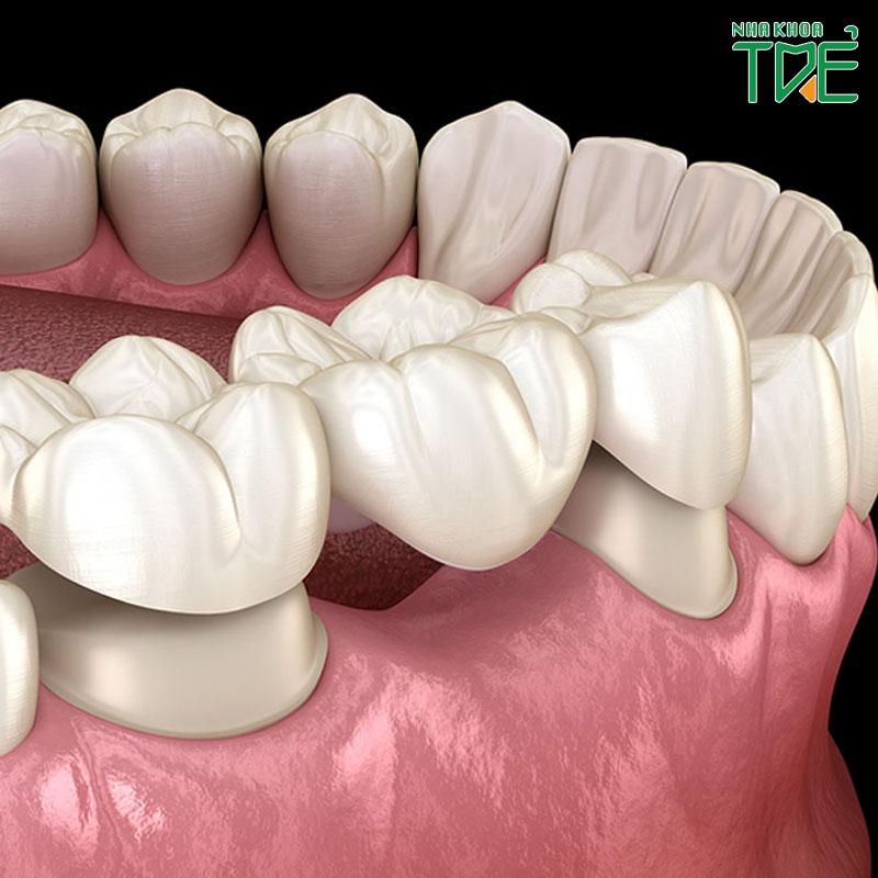 Sau mất răng có nên làm cầu răng số 4 không?