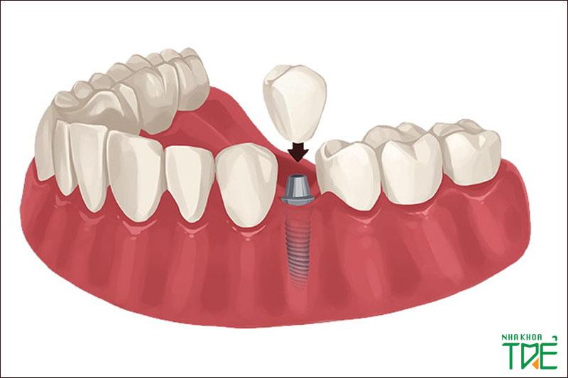 Trồng răng Implant giúp phục hình từ chân răng