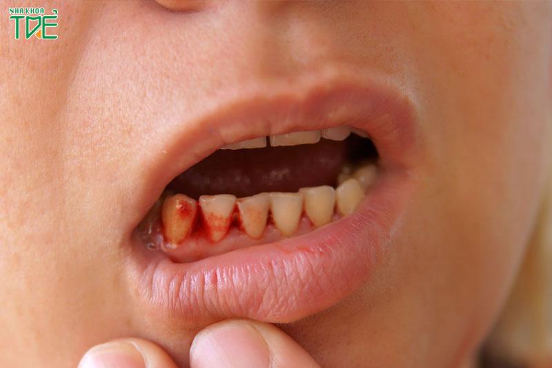 Tác hại của việc lấy cao răng có thể gây nhiễm trùng