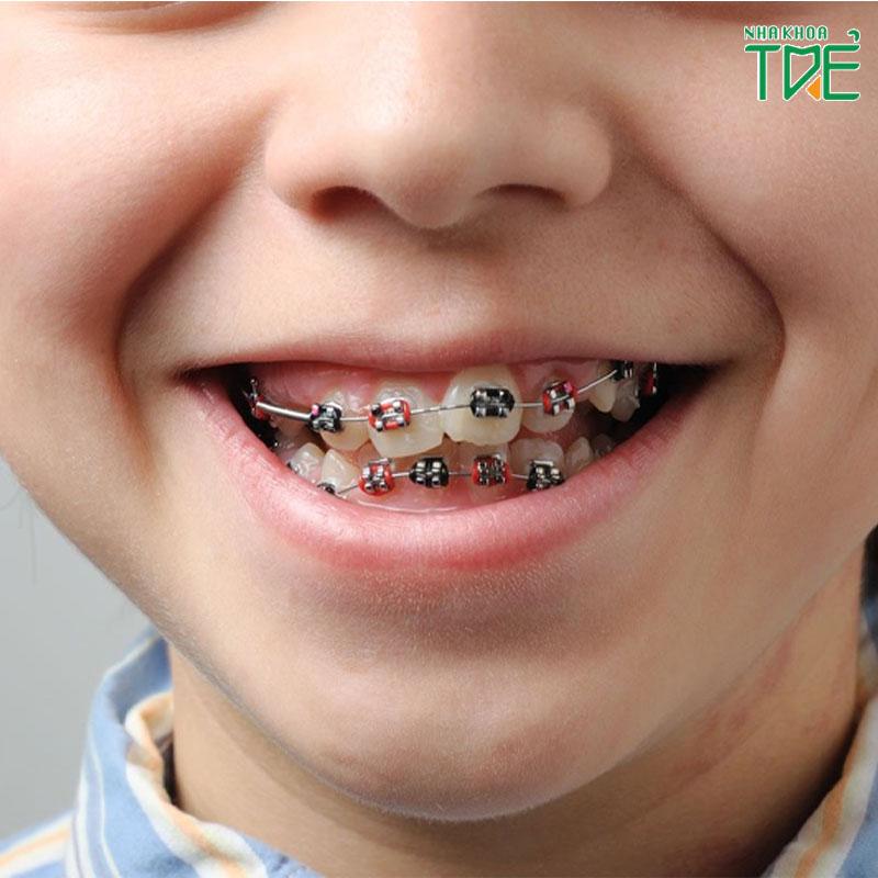 Trẻ em nên niềng răng khi nào? Quy trình niềng răng cho trẻ