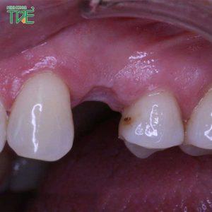 Trồng răng số 4 phương pháp nào tốt nhất? Giá bao nhiêu tiền?