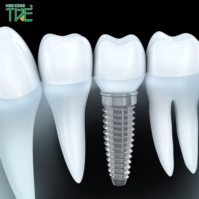 Trồng răng số 5 loại nào tốt nhất? Giá bao nhiêu tiền?