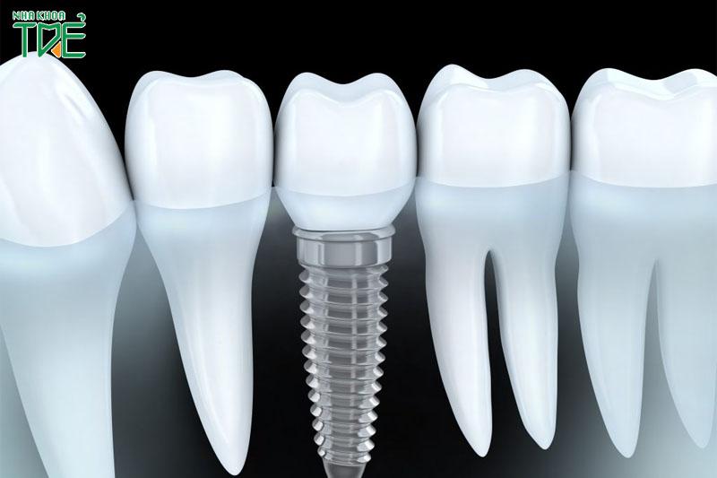 Trồng răng số 5 với Implant phục hình từ chân răng