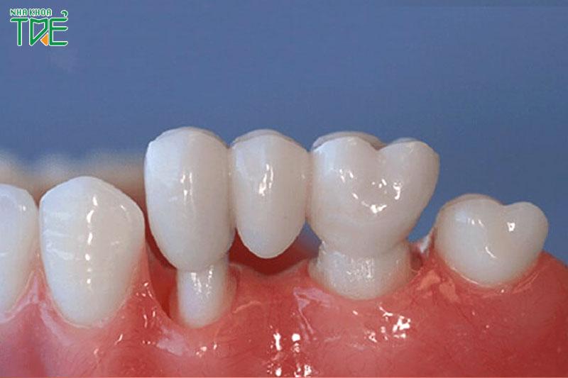 Cầu răng sứ phải mài 2 răng kế cận để làm trụ răng