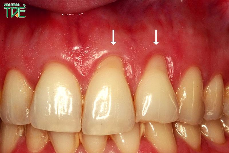 Vệ sinh răng miệng kém có thể làm tụt nướu lợi