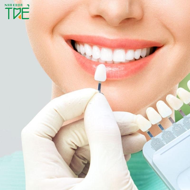 5 cách giữ răng sứ luôn trắng sáng và bền đẹp lâu dài