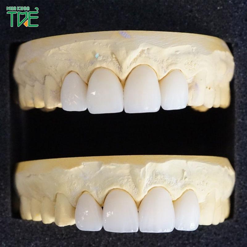 Bọc răng sứ cho 4 răng cửa có tốt không? Giá bao nhiêu?