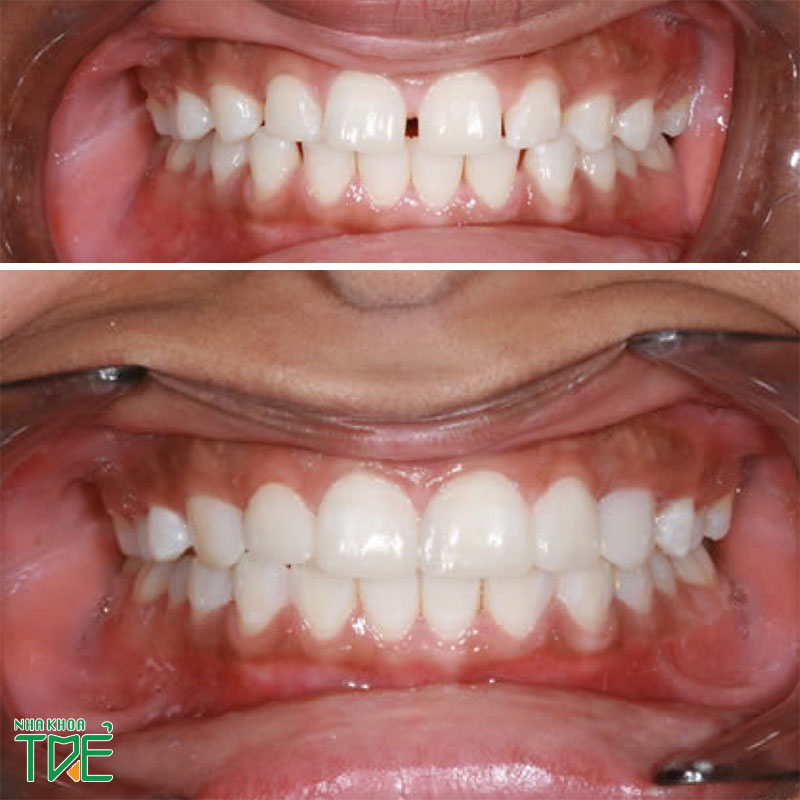 Bọc răng sứ cho răng cửa thưa có bền không? Giá bao nhiêu?