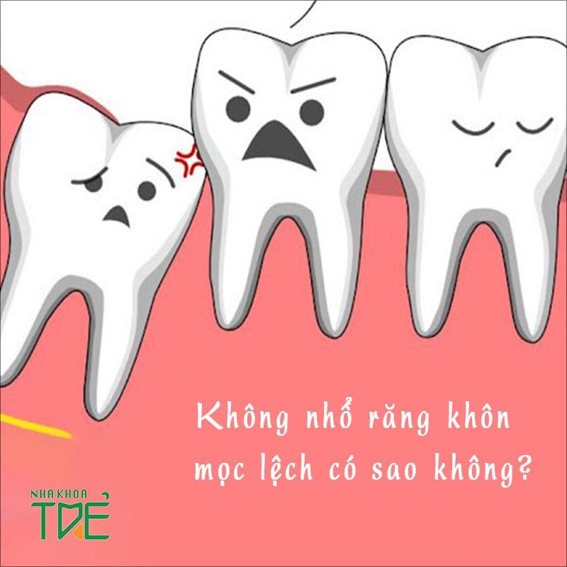 Không nhổ răng khôn mọc lệch có sao không?