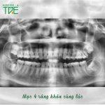 Mọc 4 răng khôn cùng lúc gây ảnh hưởng gì? Cần xử lý như thế nào?
