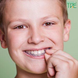Niềng răng máng nhựa cho trẻ có tốt không? Giá bao nhiêu?