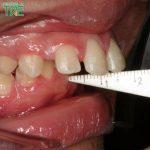 Răng bị vẩu nguyên nhân do đâu? Giải pháp điều trị hiệu quả