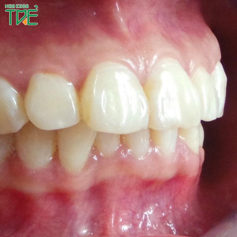 Răng hô nhẹ là thế nào? Giải pháp chỉnh răng hô triệt để