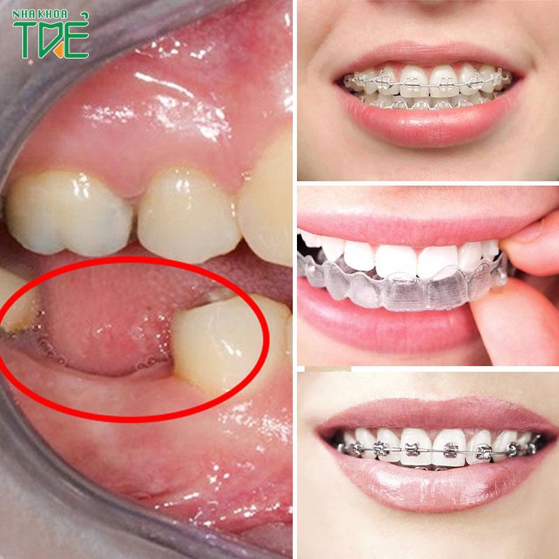 Tiêu xương hàm có niềng răng được không? Cần điều trị như thế nào?