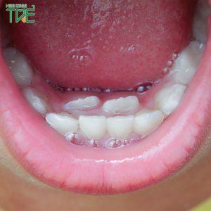 Mọc răng đôi là hiện tượng gì? Nguyên nhân và cách xử lý như thế nào?