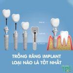 Trồng răng Implant loại nào tốt? Chi phí là bao nhiêu?