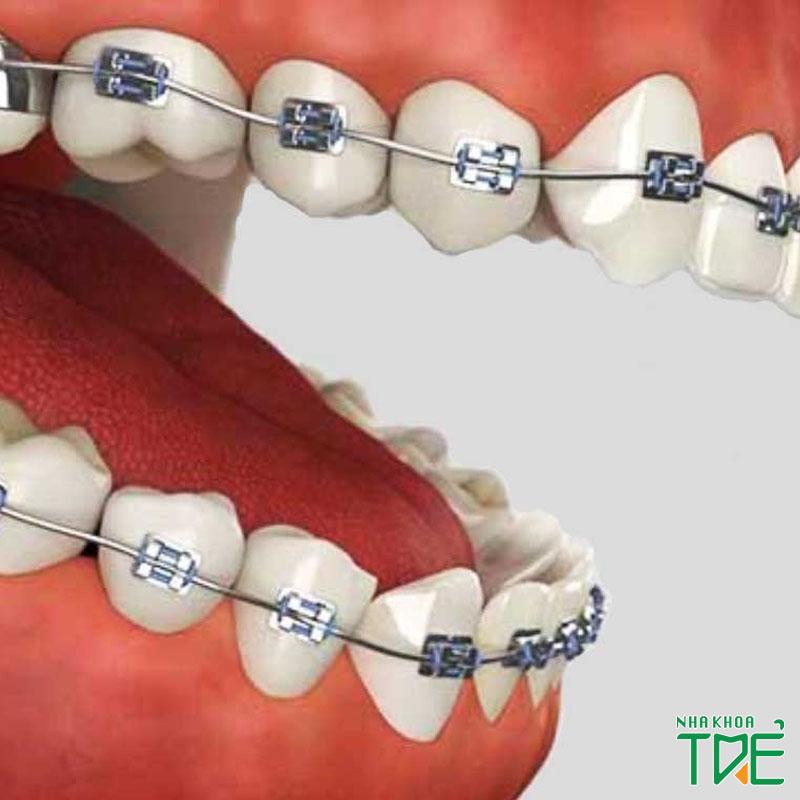 Ưu nhược điểm của niềng răng mắc cài thường và mức chi phí chỉnh nha
